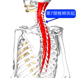 半棘筋 L2棘突起