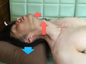 脳卒中脊柱001