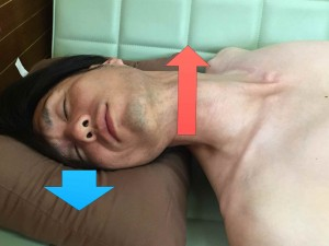 脳卒中脊柱004