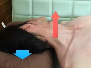脳卒中脊柱007