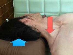 脳卒中脊柱008