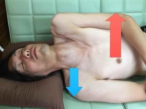 脳卒中脊柱014