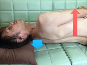 脳卒中脊柱016