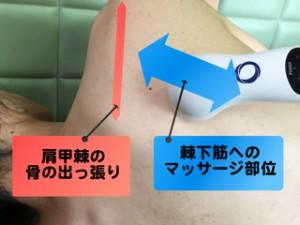 超音波 棘下筋 1