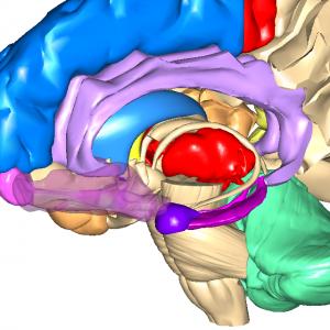 扁桃体・海馬・眼窩前頭L1