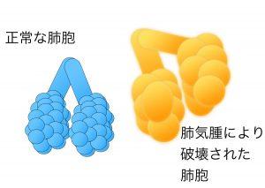 肺気腫 2